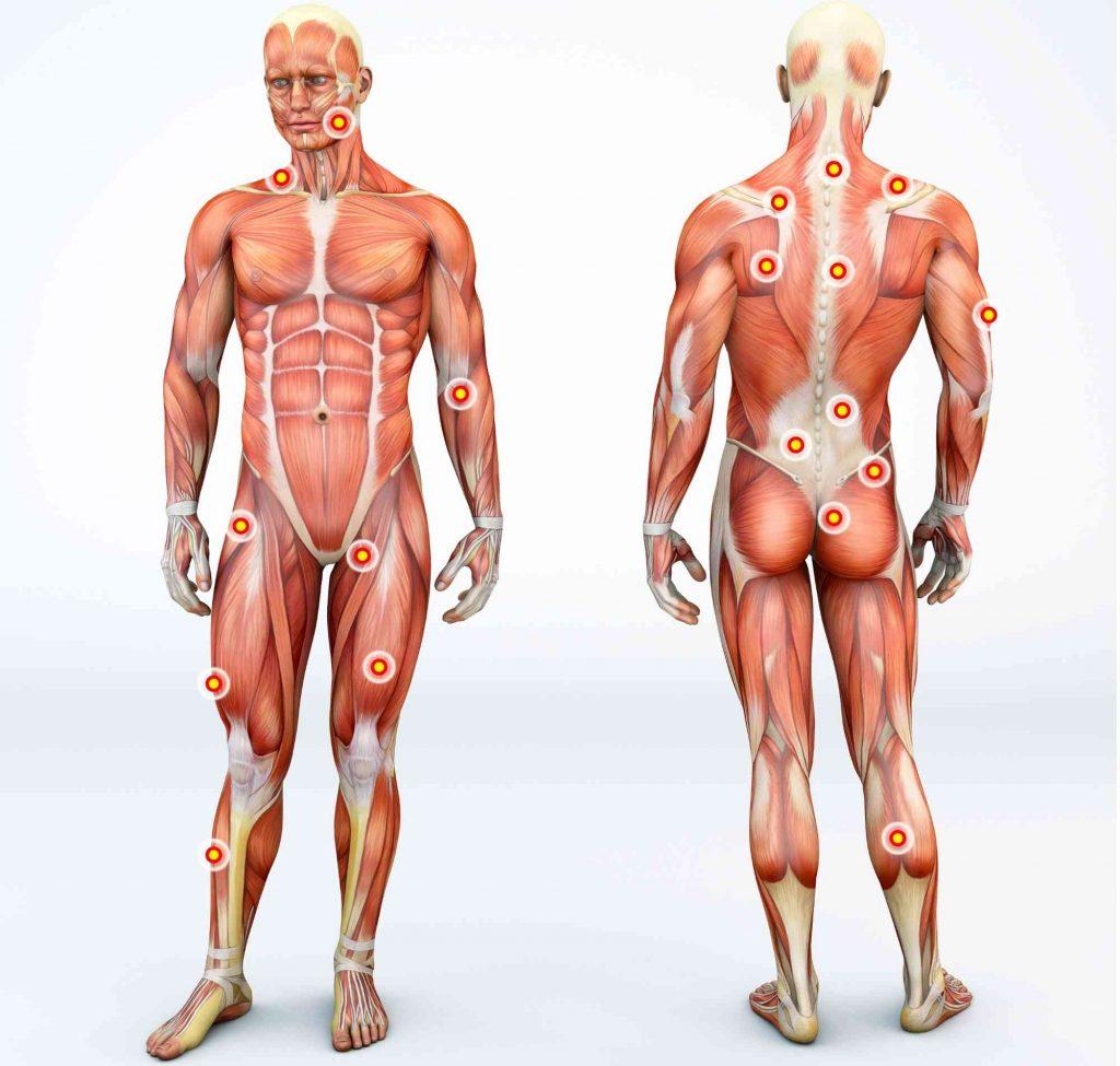 triggerpoint therapie fysio rhoon